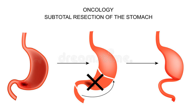 Subtotal resection of the stomach. vector illustration