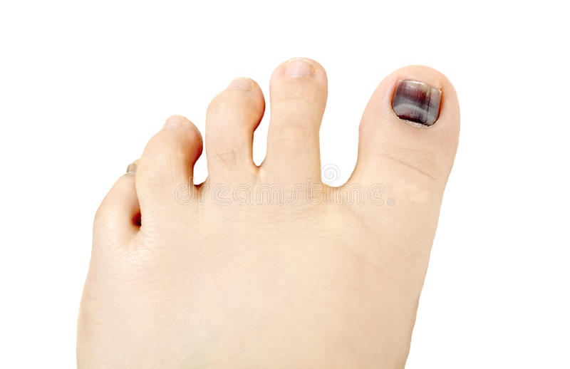 Subungual hematoma blue and black toe nail royalty free stock photo