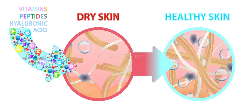 Sucha skóra bogacąca z witaminami, odżywianie skóra zdrowa również zwrócić corel ilustracji wektora ilustracja wektor