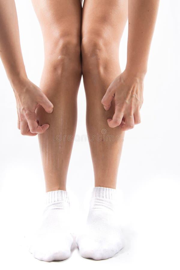 Sucha skóra na nogach, świerzbieć nogi, osoba cierpi od świerzbieć na jego nogach na skutek suchej skóry obraz royalty free