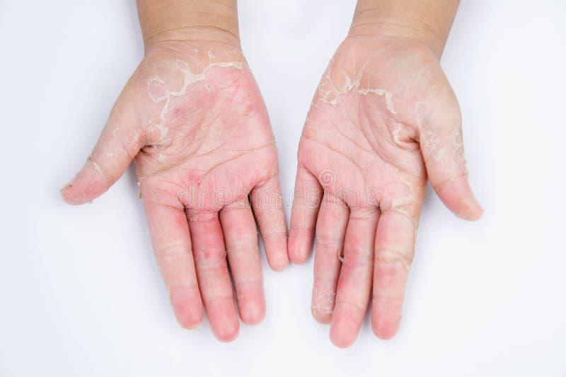Suche ręki, łupa, Kontaktowy dermatitis, fungal infekcje, skóra inf fotografia royalty free