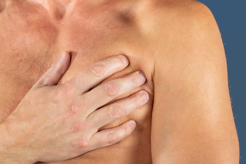 Sufrimiento del hombre del dolor de pecho, teniendo el ataque del corazón o calambres dolorosos, presionando en pecho con la expr fotografía de archivo libre de regalías