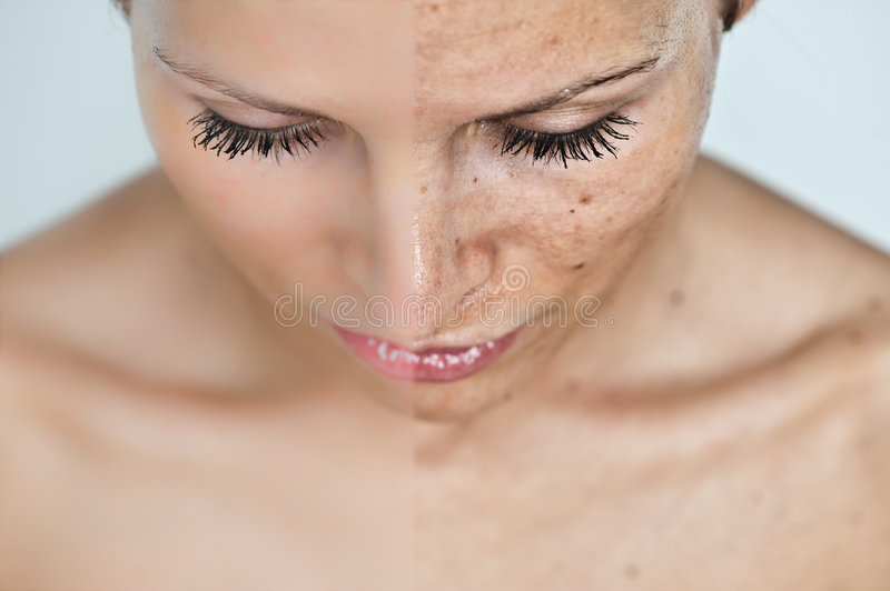 Before and after sun damage stock photos