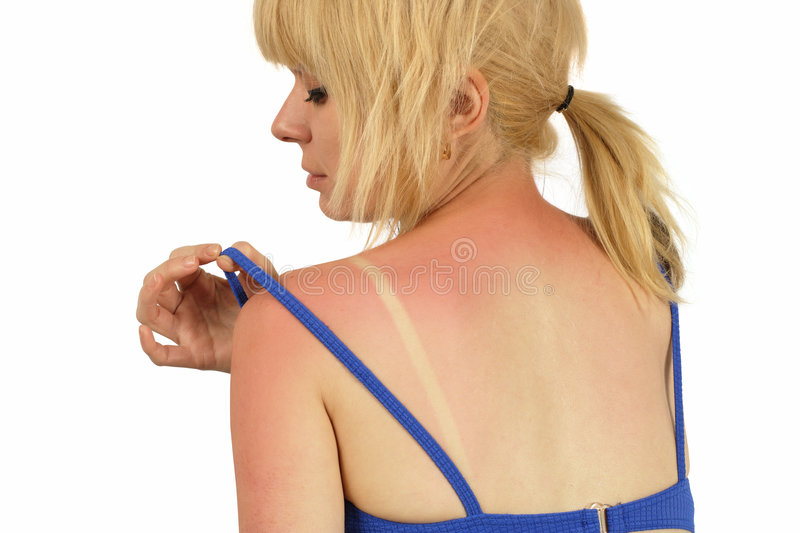 Sunburn. Blond female with a bad sunburn on her back stock images