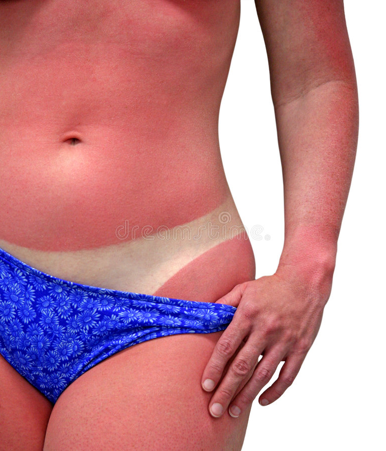 Sunburn. A woman's body with a bad case of sunburn. Isolated on white background and includes clipping path stock image