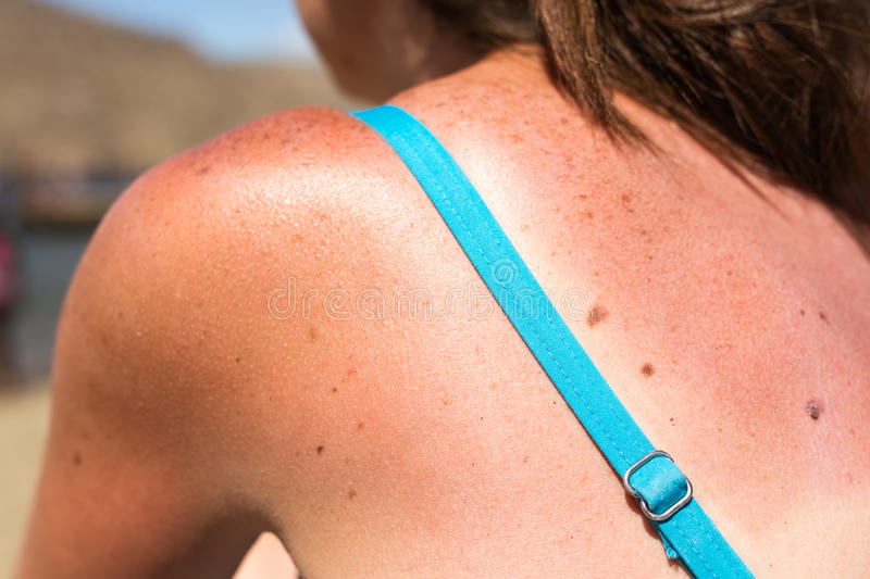 Sunburn from beach sun light on the shoulder and back of caucacian girl,woman at the vacation beach on holiday in. Summer.Awareness of skin cancer stock photography