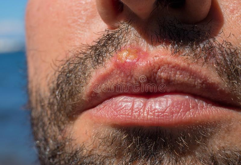 Sunburn on man lips closeup. Sun burn or bacterial infection on skin. Skin medical problem. Skin inflammation. Sunburn on man lips closeup. Sun burn or bacterial stock photography