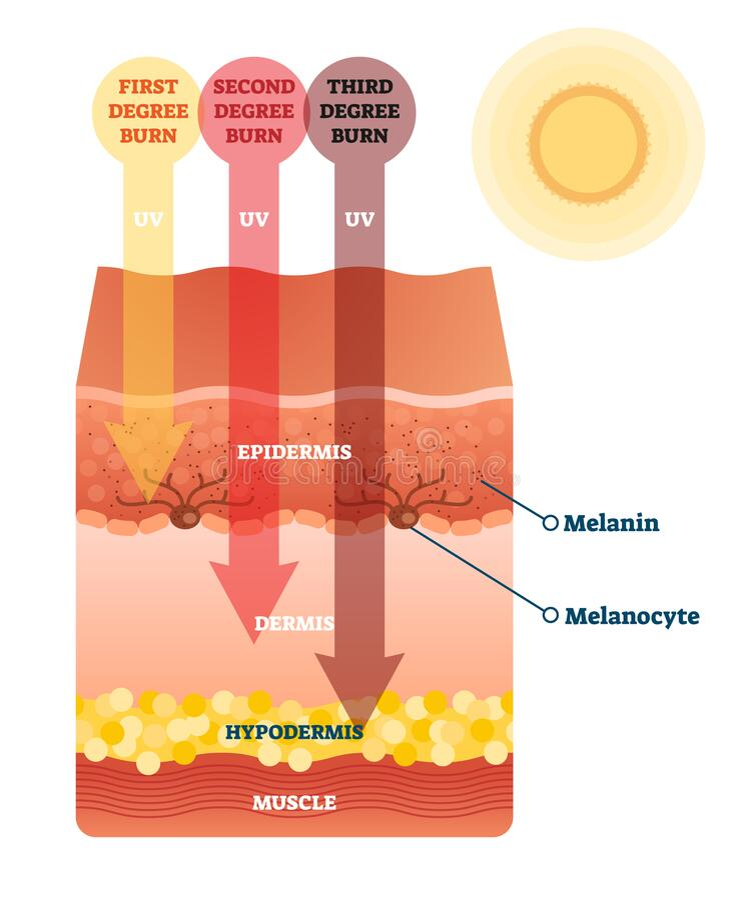 Free Sunburn Skin Damage Anatomical Cross Section Diagram Royalty Free Stock Photo - 181189125