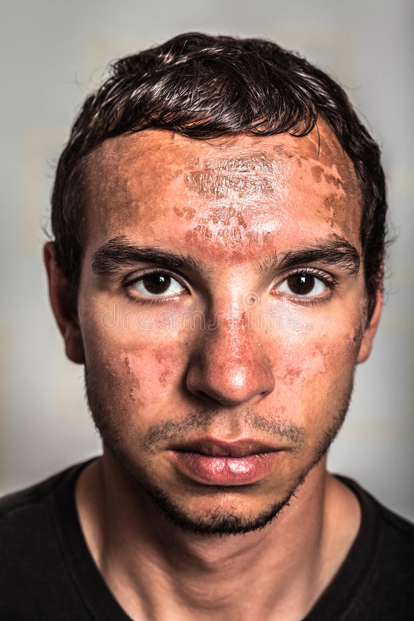 Sunburn skin on male face. Sunburn skin peeling on male face caused by extended exposure on direct sun stock image