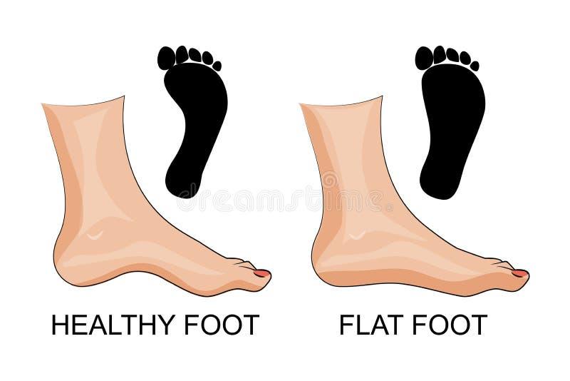 Sund och plan fot för fot fotspår stock illustrationer