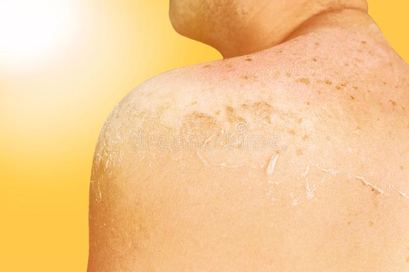 Sunny sunburn concept. Back of a man with skin burned in the bright sun. Dangerous sunburned skin stock photography