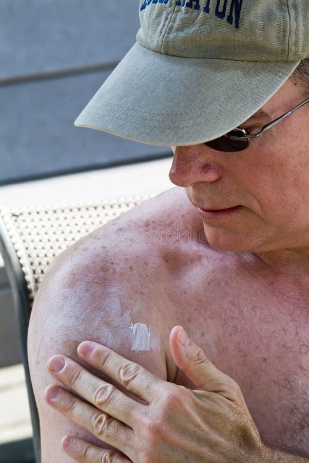 Sunscreen. A man wearing a cap, rubbing sunscreen on his shoulder stock photos