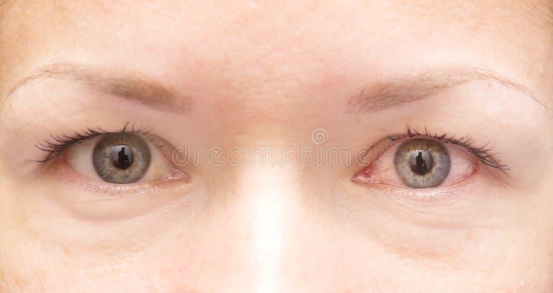 Sunt och irriterat öga arkivfoto