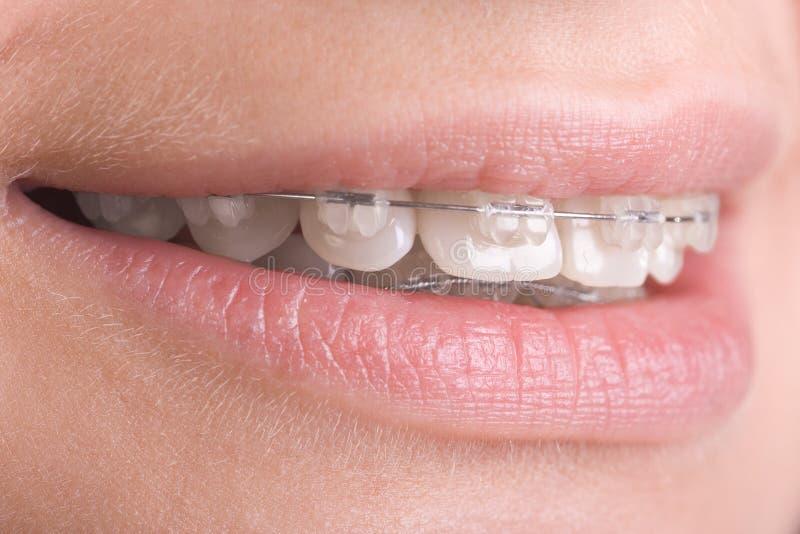 Supports sur des dents photos libres de droits