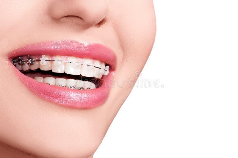 Supports sur des dents Sourire de bagues dentaires Demande de règlement orthodontique photos libres de droits