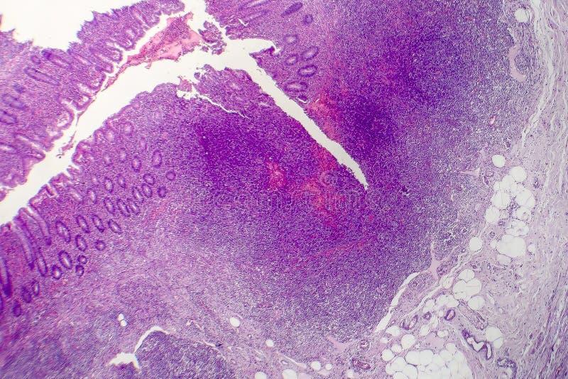 Suppurative аппендицит, светлый микрорисунок стоковая фотография rf