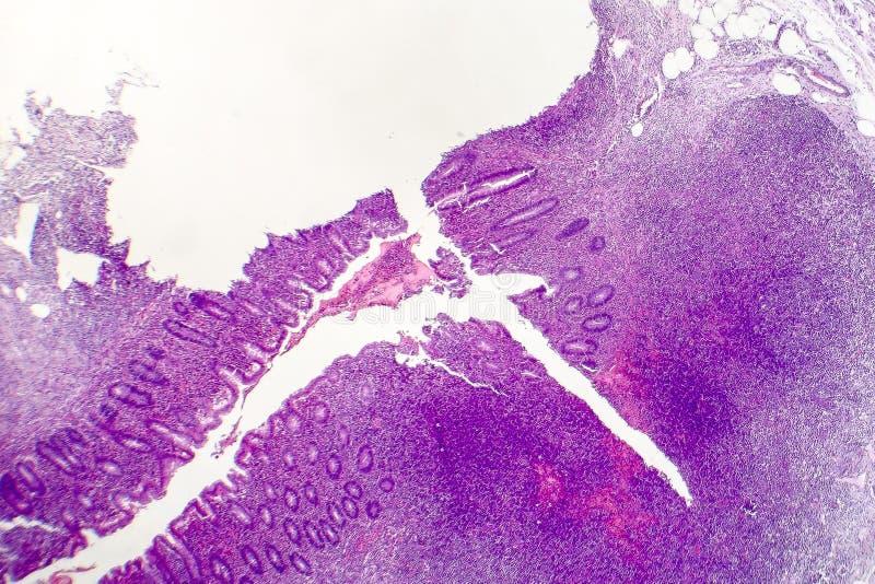 Suppurative аппендицит, светлый микрорисунок стоковая фотография