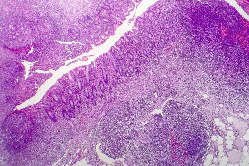 Suppurative blindedarmontsteking, lichte micrograaf stock afbeelding