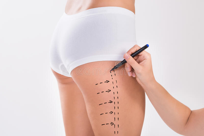 Surgeon Preparing Woman For Liposuction Surgery On Thigh stock image