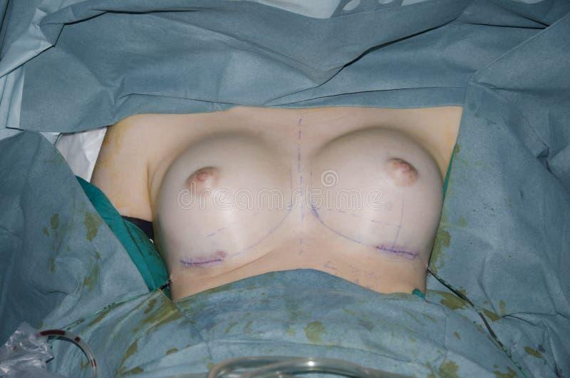 surgery στοκ εικόνα με δικαίωμα ελεύθερης χρήσης