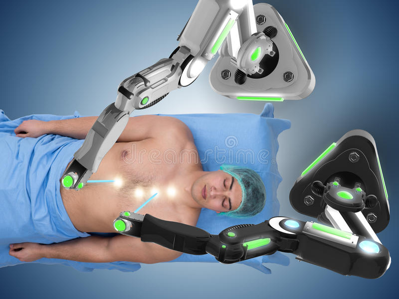 The surgery performed by robotic arm. Surgery performed by robotic arm stock photo
