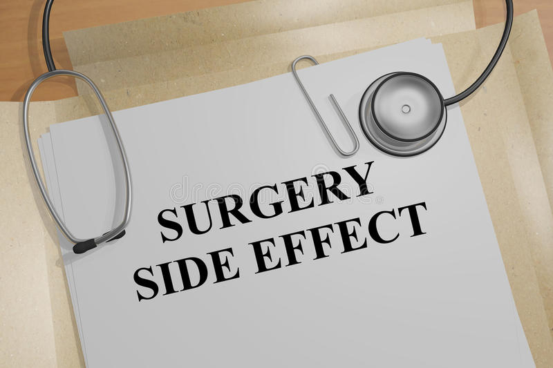 Surgery Side Effect - medical concept. 3D illustration of SURGERY SIDE EFFECT title on medical document stock illustration