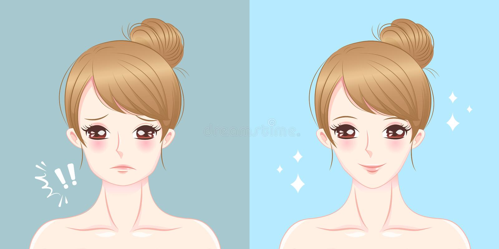 Woman with chin surgery. Surgery woman with tip chin before and after on the blue background vector illustration