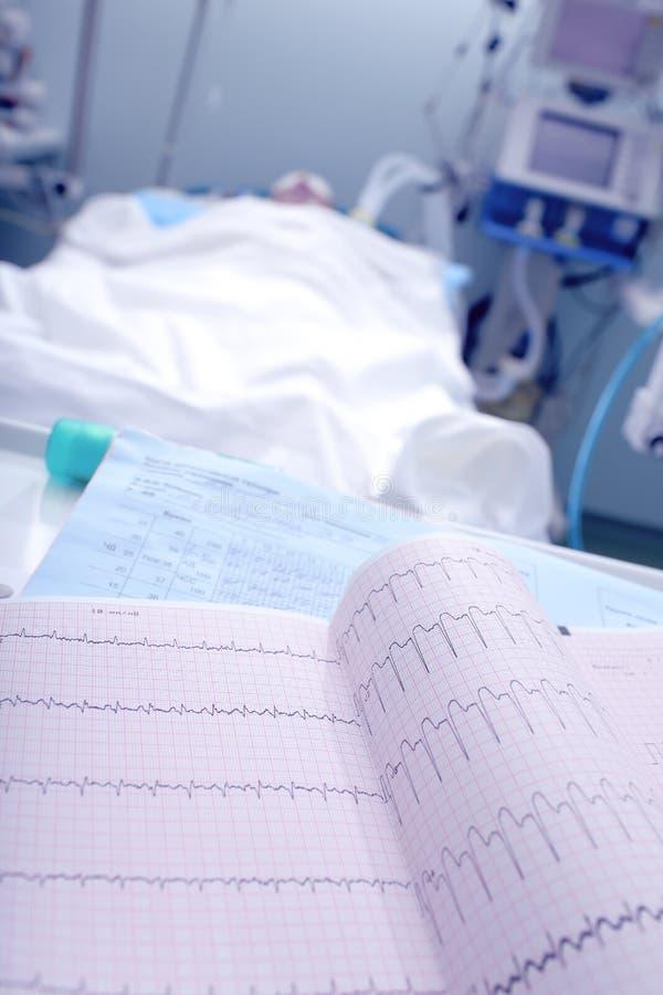 Surveillance de l'ECG du patient photographie stock