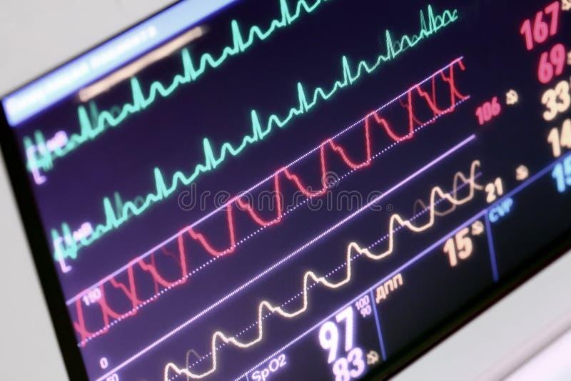 Surveillance du patient dans l'ICU images stock