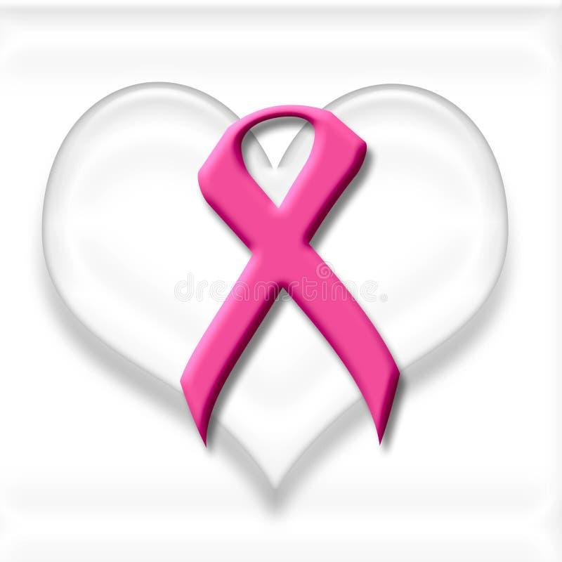 Sustentação do cancro da mama ilustração do vetor