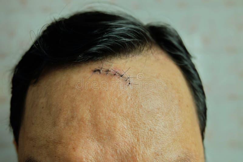 Sutura cosida siete puntadas en la cabeza del accidente, lesión en la cabeza foto de archivo