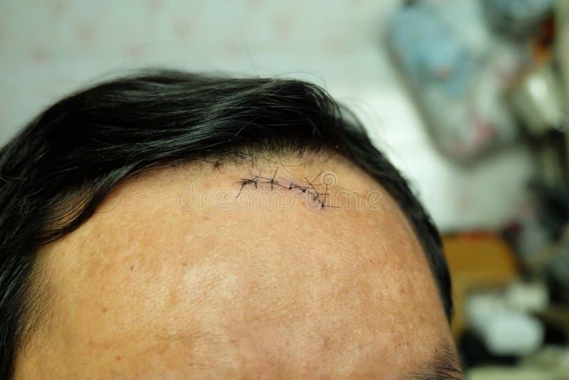Sutura cosida siete puntadas en la cabeza del accidente, lesión en la cabeza imagen de archivo libre de regalías