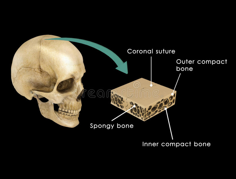 Suture between skull bones. A suture is a type of fibrous joint which only occurs in the skull (or cranium). They are bound together by Sharpey's vector illustration