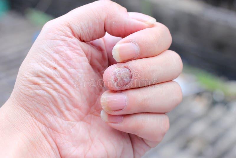 Svamp Infektion På Nails Handen, Finger Med Onychomycosis