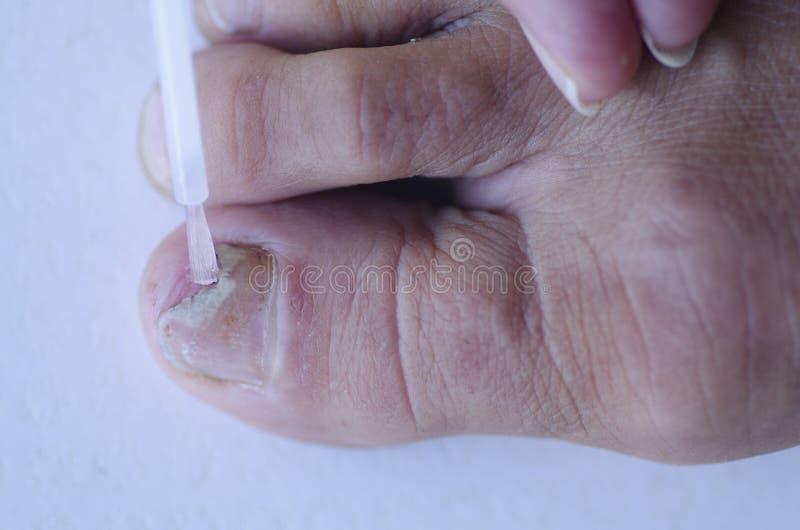 Svamp infektion på tånagelmedicinsk behandling fotografering för bildbyråer