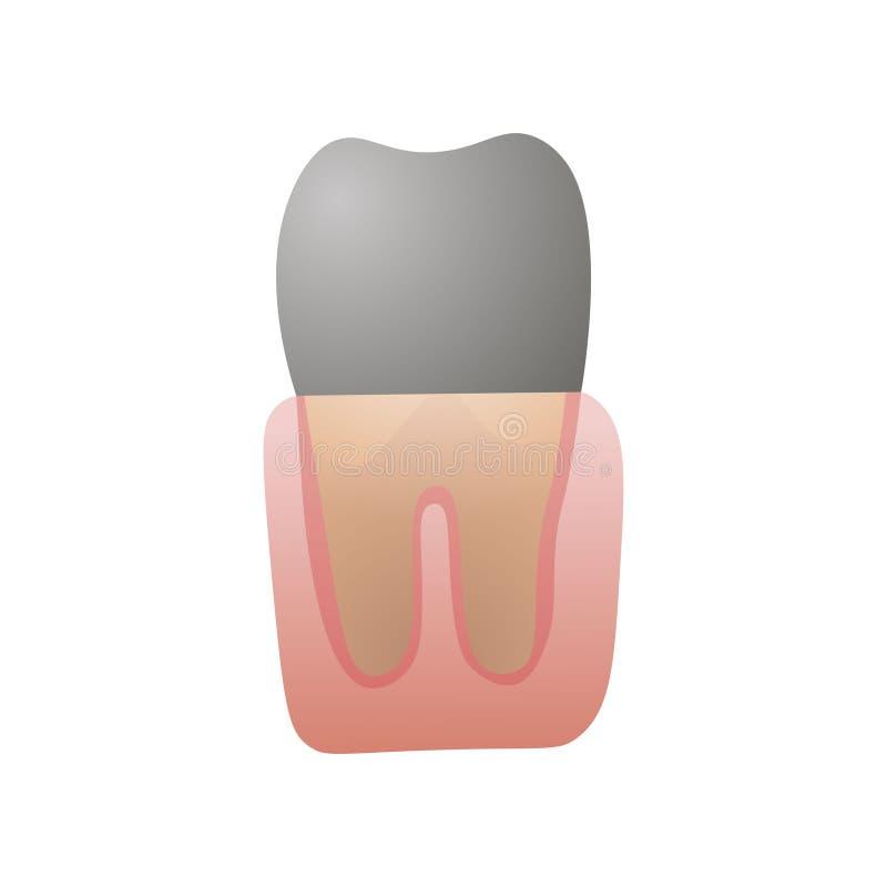 Svart kariestand dåligt, modernt stomatologykabinett stock illustrationer