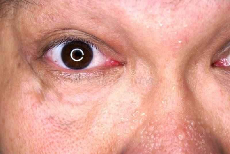 svettig ögonframsida arkivbild