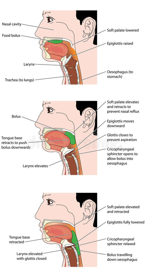 The swallowing mechanism. The actions involved in the swallowing of a food bolus, showing how the epiglottis is used to prevent inhalation of food. Created in vector illustration