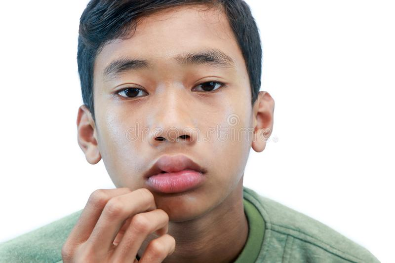 The swollen mouth,. Swollen mouth, initial symptoms of some allergies stock photography