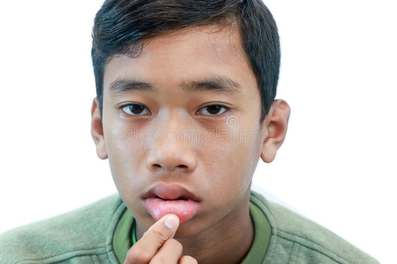 The swollen mouth,. Swollen mouth, initial symptoms of some allergies stock images