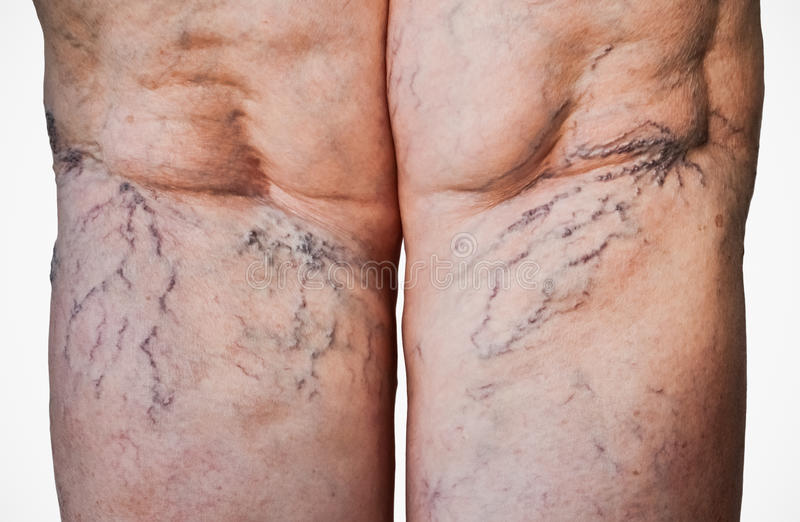 Swollen veins on legs stock photo
