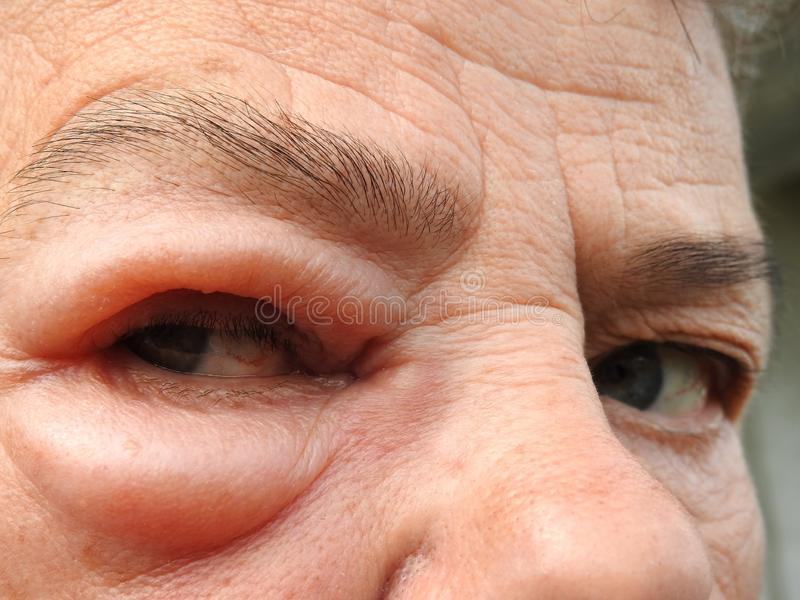 Swollen woman eye after insect bit, Lithuania royalty free stock photos