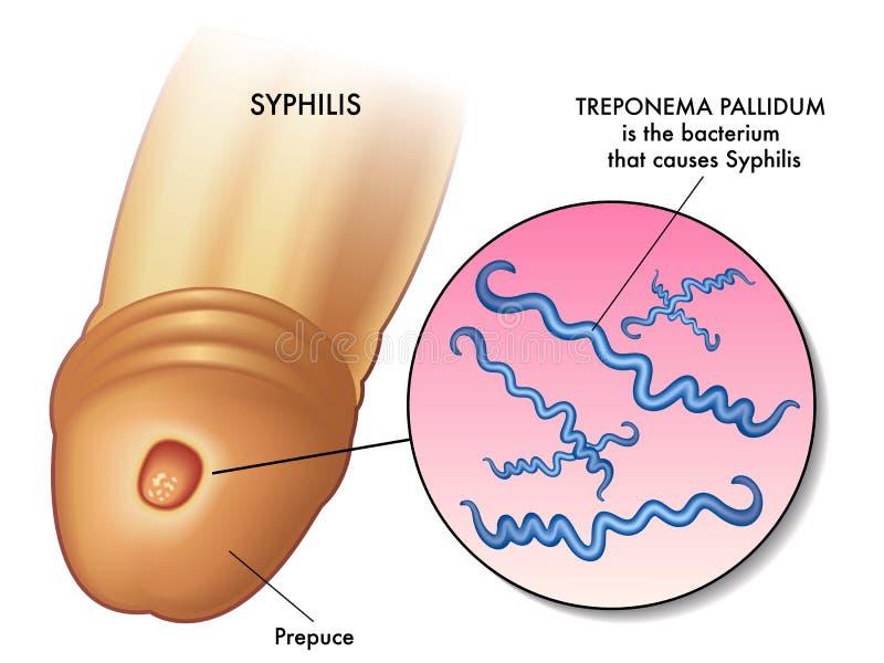 Syfilisillustration royaltyfri illustrationer