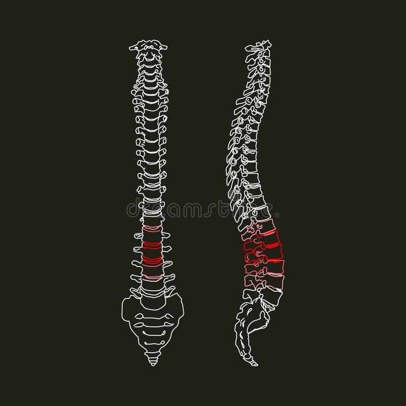 Sylwetka Ludzki kręgosłup na czarnym tle royalty ilustracja