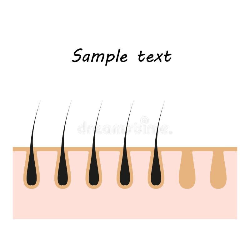 Symbolsillustration av hudhår Vektorbeståndsdel på isolerad bakgrund för kosmetiska depilationprojekt, medicin vektor illustrationer