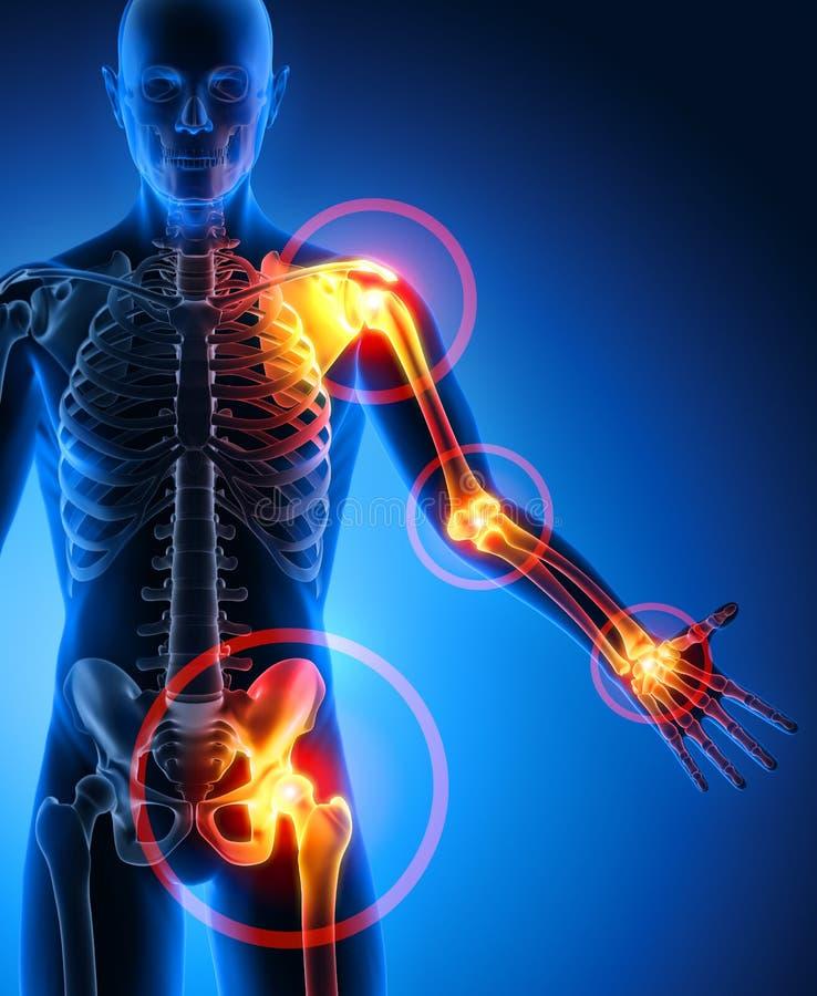 Symptômes lourds de douleurs articulaires d'homme illustration stock