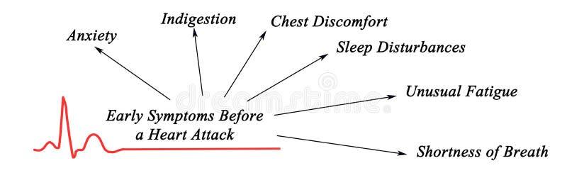 Symptômes tôt avant crise cardiaque illustration stock