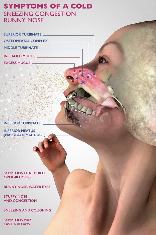 Symptome einer kalten, menschlichen Anatomie, des Abschnitts 3d, der Allergie und des Blütenstaubs stock abbildung