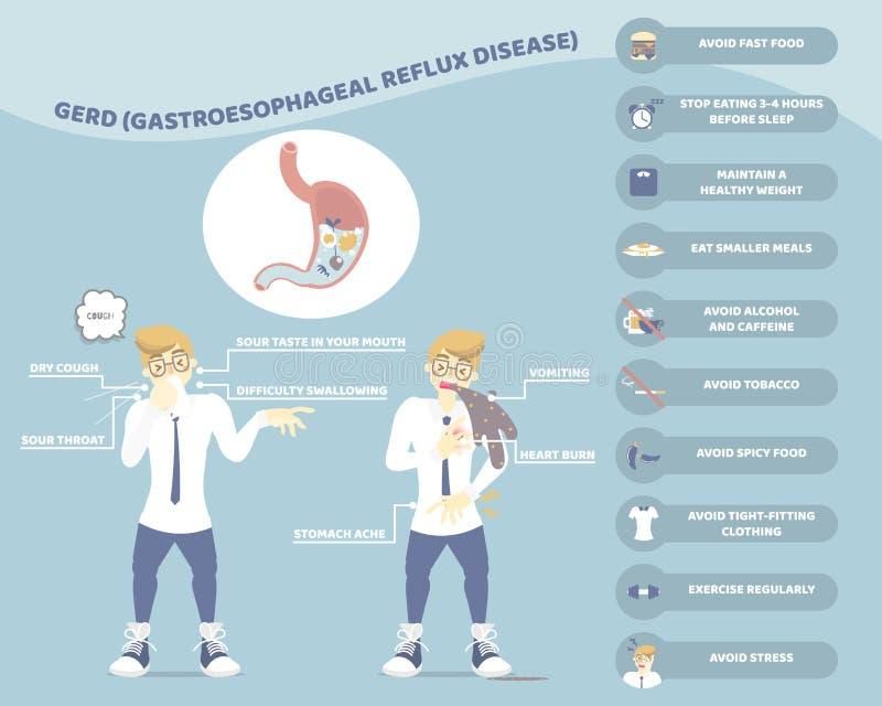Symptomen, behandeling met en mens die, maaggerd gastroesophageal zuur de gezondheidszorgconcept van de terugvloeiingsziekte hoes royalty-vrije illustratie