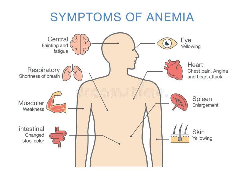 Symptomen gemeenschappelijk voor vele soorten Bloedarmoede royalty-vrije illustratie
